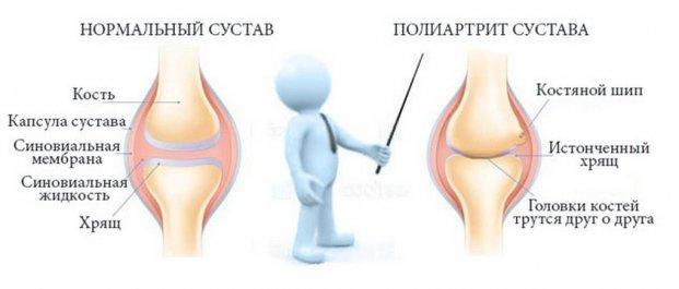 Опухоль в коленном суставе при полиартрите