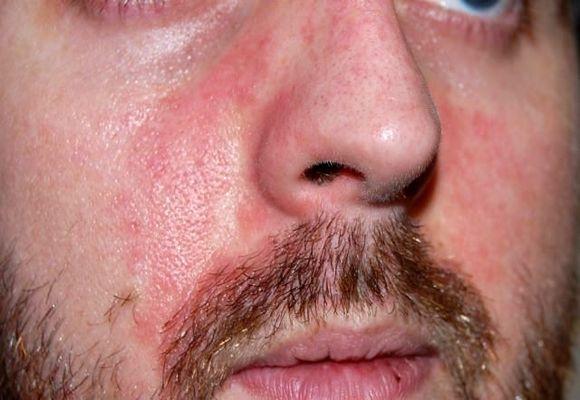 аллергическое покраснение