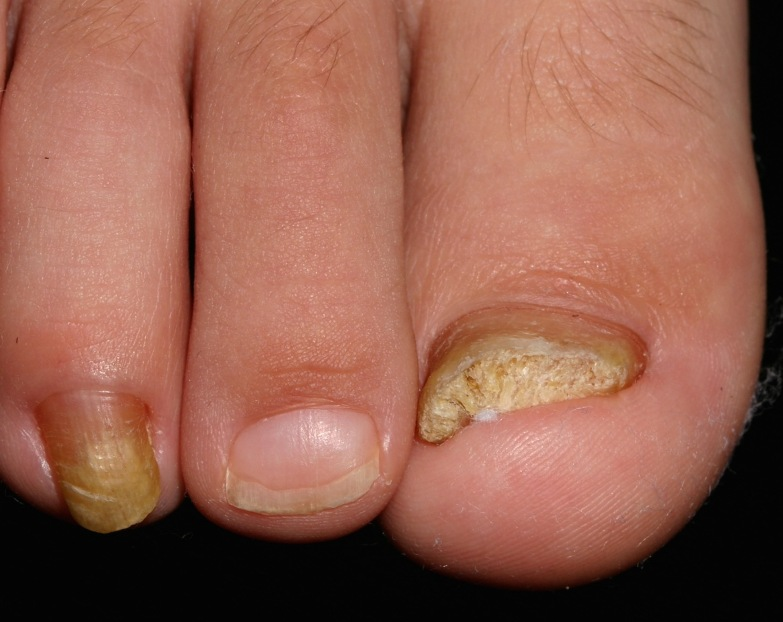 эКак выглядит пидермофития ногтей