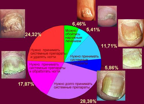 Причины возникновения грибка