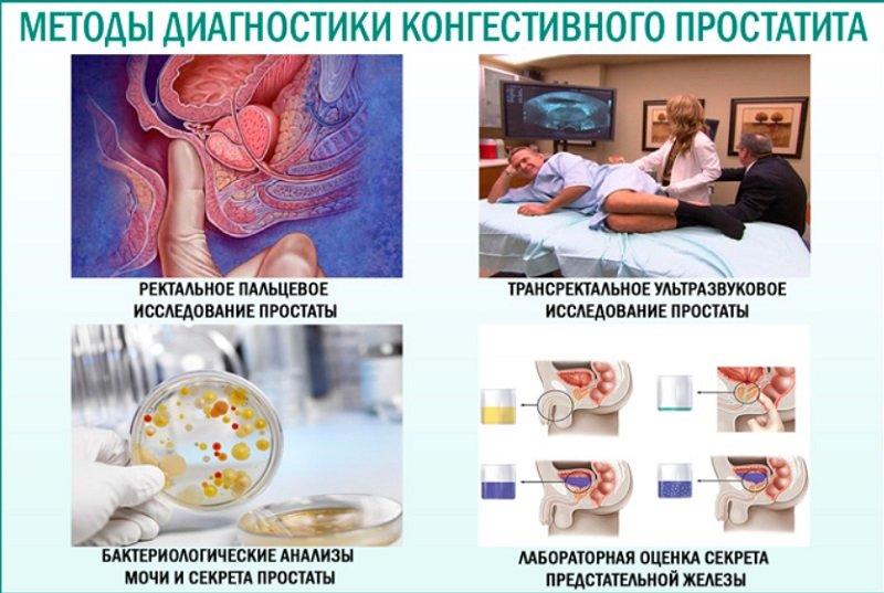 У мужчин, соблюдающих основы здорового образа жизни, воспалительный процесс в простате возникает реже.