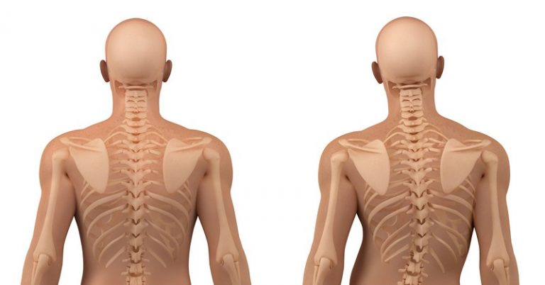 Лечение сколиоза остеопатией