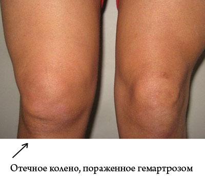 Ушиб гемартроз коленного сустава