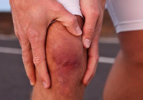 Воспаление колена после ушиба