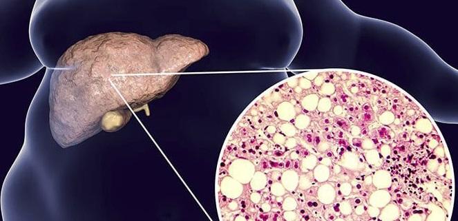 Причины зуда кожи при заболевании печени