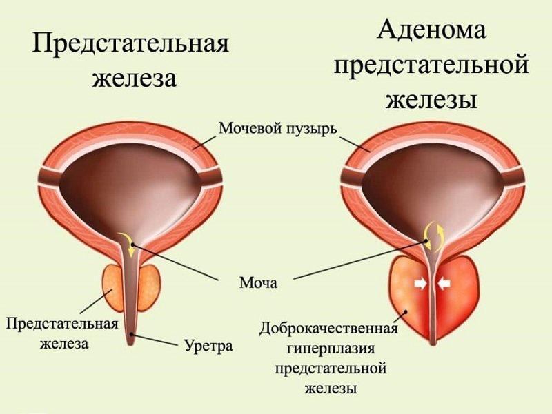 Аденома простаты, при неправильном лечении и восстановлении может перейти в онкологию.