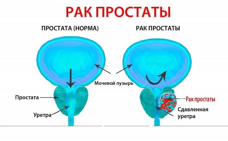 Рак предстательной железы 1 степени - вероятная продолжительность жизни больного