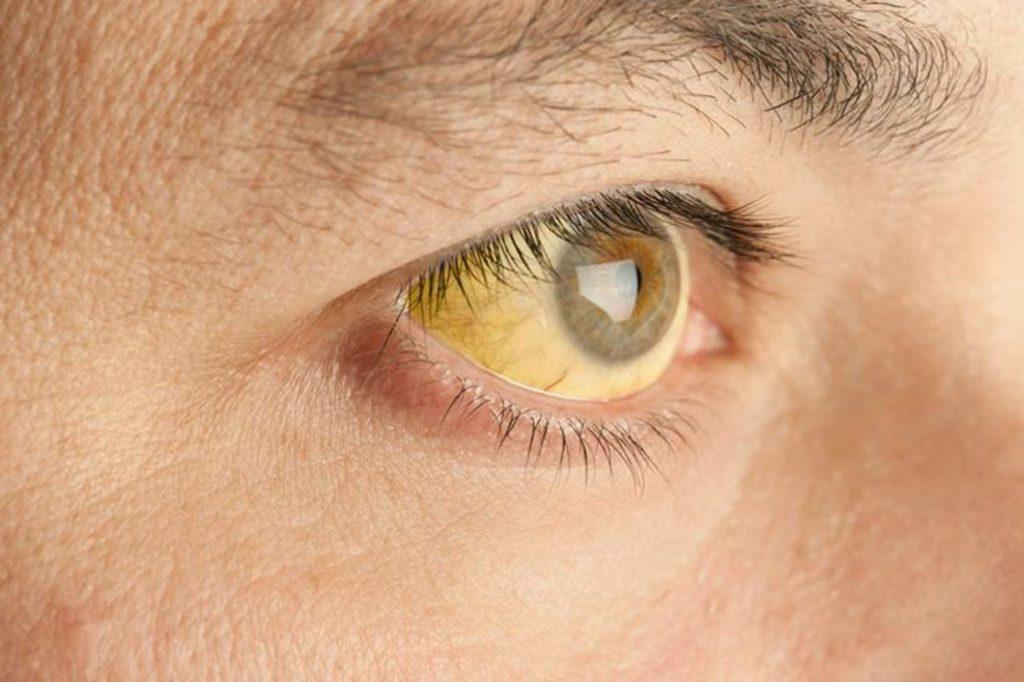 Желтуха – симптом повышенного содержания билирубина в крови