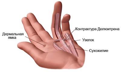 Посттравматическая контрактура кисти