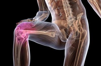Диагностика синовита коленного сустава