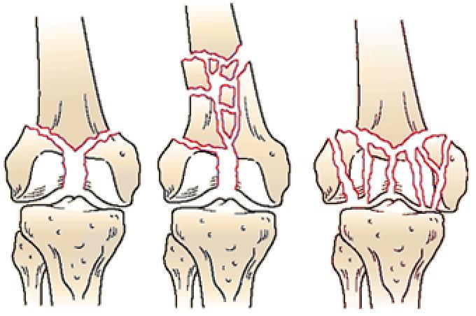 Мыщелковый перелом бедренной кости