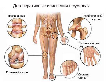 Гиалуроновая кислота для суставов при дегенеративных изменениях сустава
