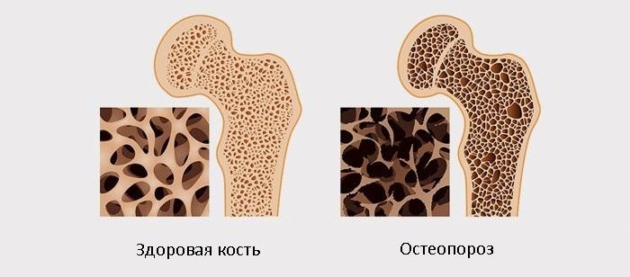 Отек ноги после остеопороза