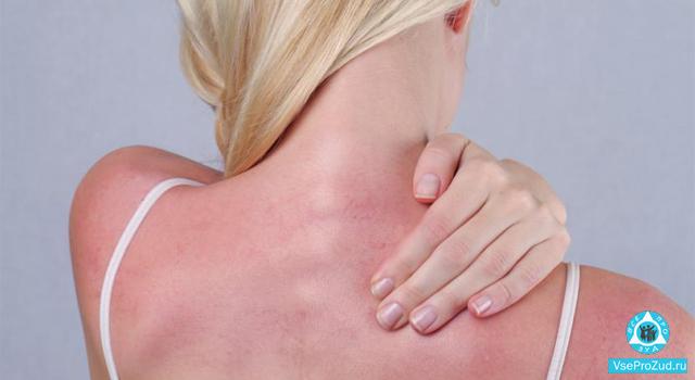 солнечные ожоги и сыпь на теле у женщины