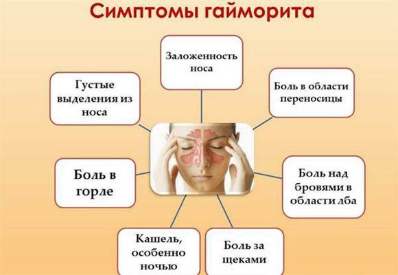 схема симптомы гайморита
