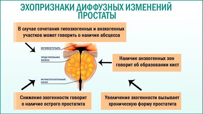 Если вовремя пролечиться, это значит, что риск негативных последствий для репродуктивной системы и сексуальной сферы минимальные.