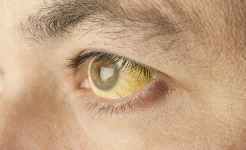 Симптомы гемолитической желтухи