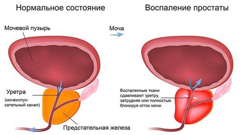 Опасность развития инфекционного простатита