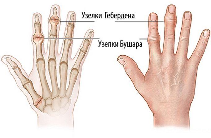 Причины артроза пальцев
