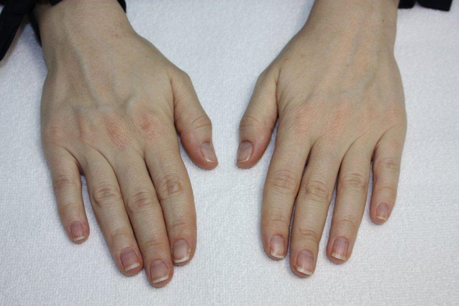 Внутренние причины темных ногтей