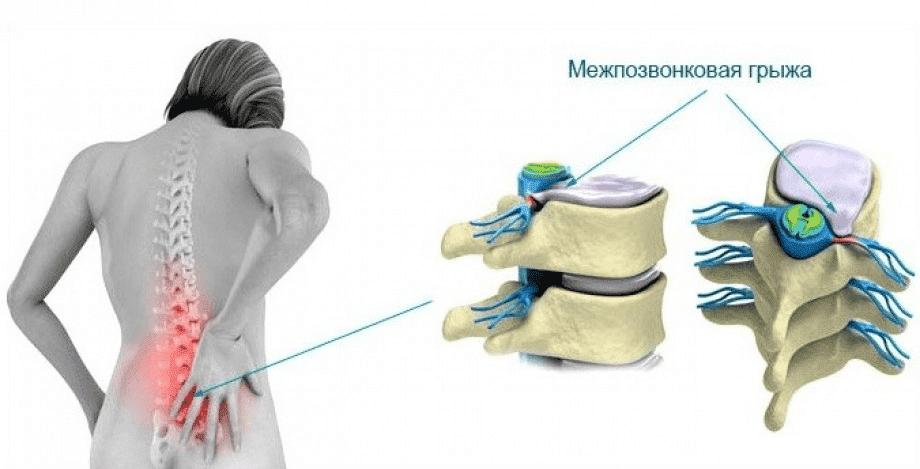 Мануальная терапия при межпозвонковой грыже