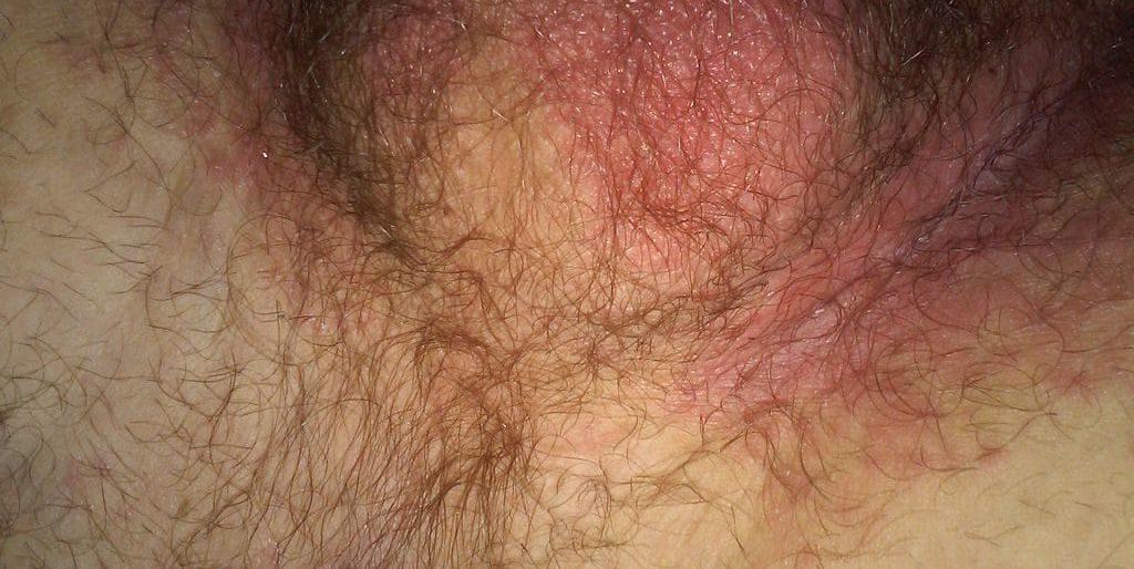 Симптомы грибка на мошонке