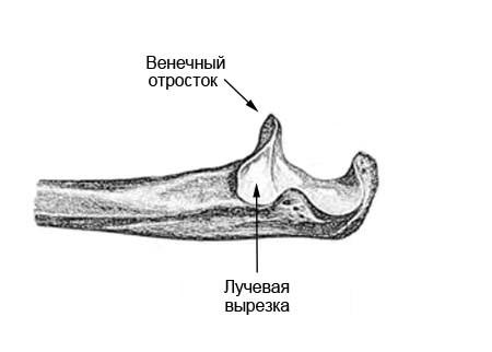 Ужасная триада локтевого сустава, вывих с переломом