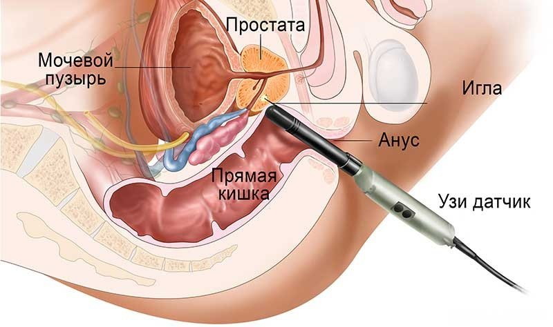Вариант проведения УЗИ зависит от симптомов патологии.
