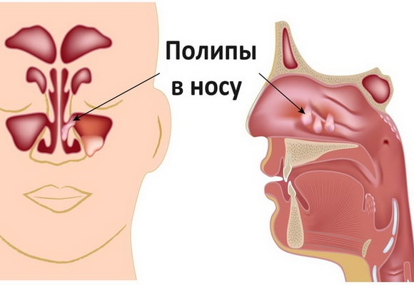 Полипы в носу
