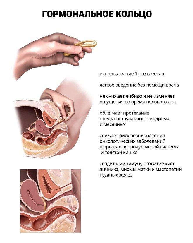 Установка вагинального кольца