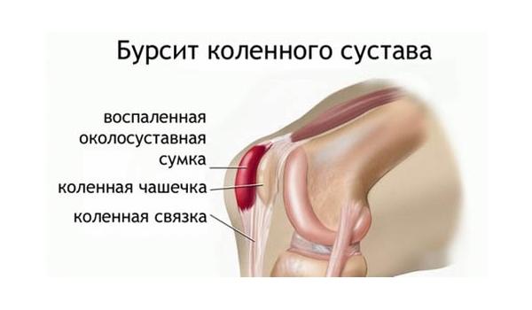 Опухоль коленного сустава при бурсите