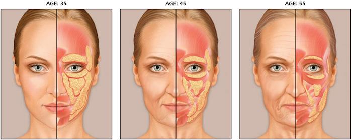 возрастные изменения кожи глаз
