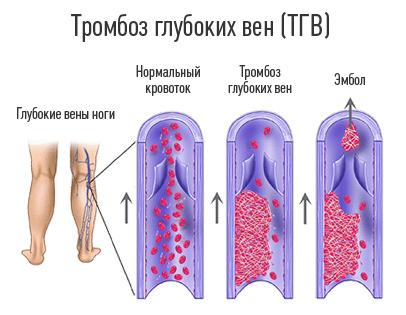 Гепарин при венозном тромбозе