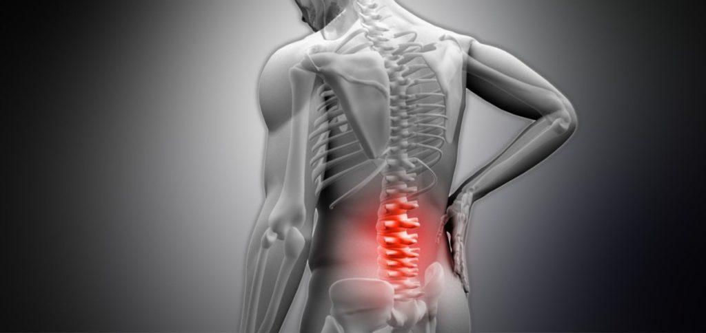 Субхондральный склероз суставов
