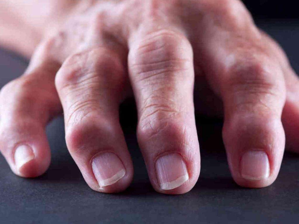 Болят суставы пальцев рук причины