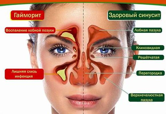 Гайморит и здоровый синусит
