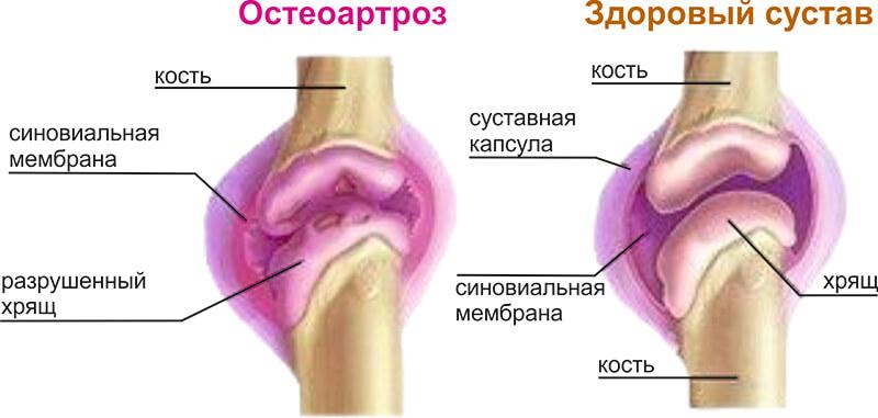 Воспаление суставов причины