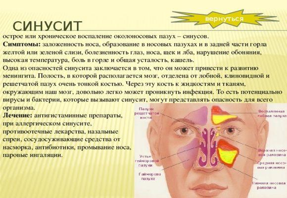 схема что такое синусит