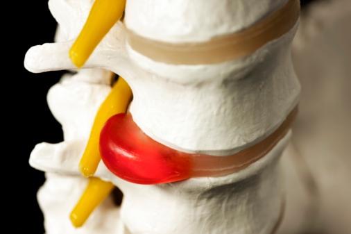 Осложнения при остеохондрозе пояснично-крестцового отдела