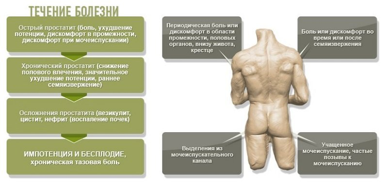 что влияет на заболевание простатита