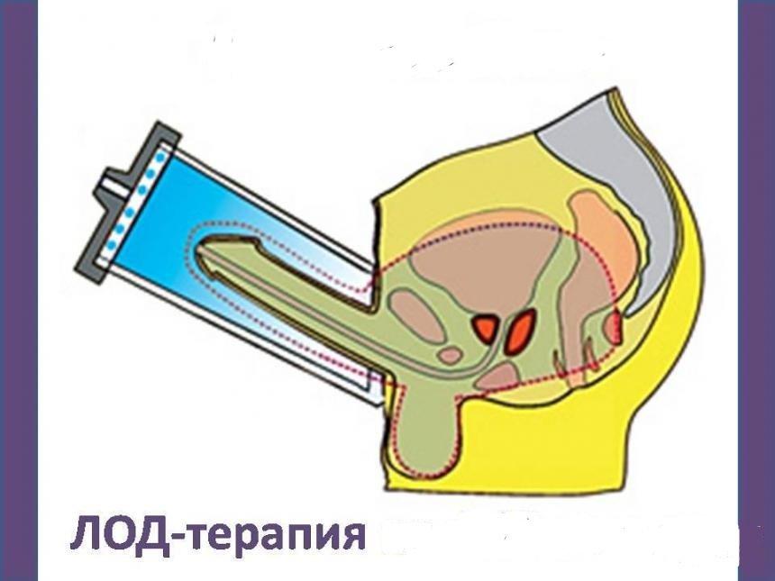 После проведения процедуры результат сохраняется на протяжении 30 минут
