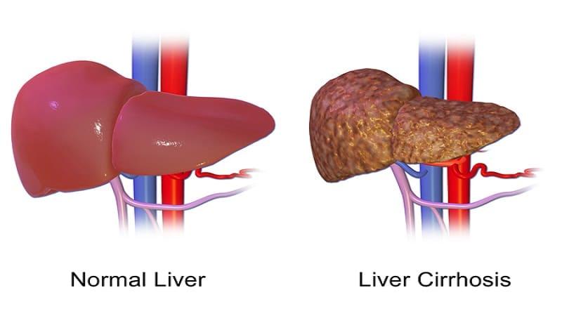 Симптомы при циррозе печени у мужчин на последних этапах