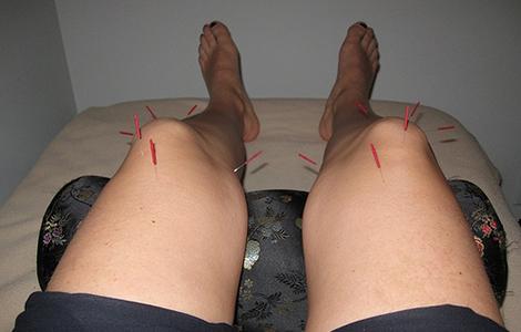 Иглоукалывание колена при лечении артрита