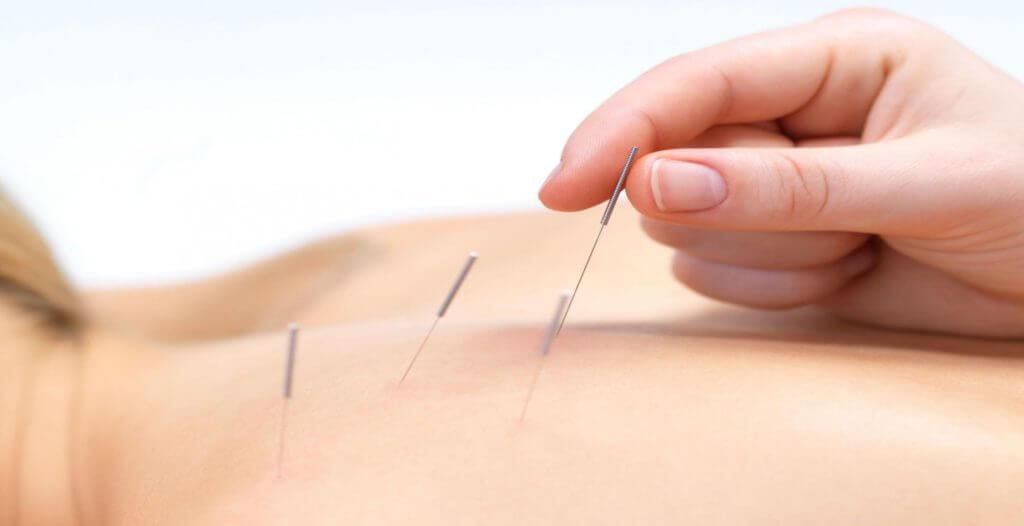 Лечение остеохондроза дома рефлексотерапия