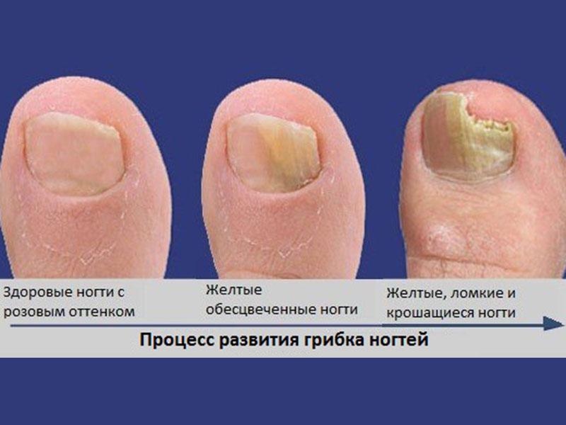Как развивается грибок ногтей