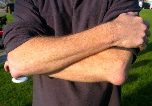 Бурсит локтевого сустава фото симптомы и лечение
