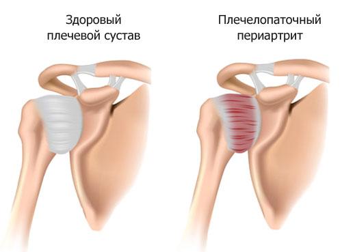 Плечевой переартрит