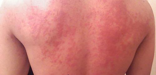 Аллергия на Быструмгель