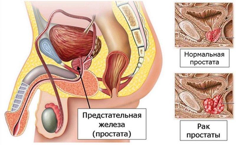 Ранняя гормонотерапия замедляет прогрессирование и может увеличить выживаемость по сравнению с отсроченной.