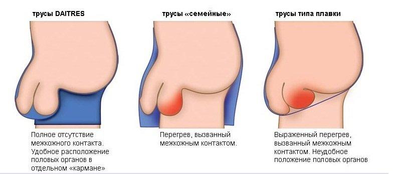 Ношение неправильного белья нередко приводит к патологиям.